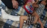 Có thể khởi tố vụ học sinh bị ô tô đâm gãy chân