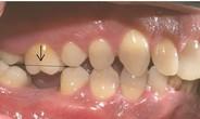 Trồng răng cấm giá bao nhiêu là chuẩn nhất?