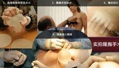 Cận cảnh một ca phẫu thuật nâng ngực