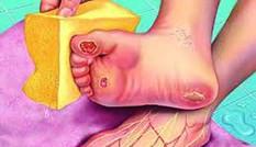 Bệnh đái tháo đường tê bì chân và nguy cơ tàn phế