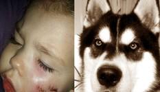 Bé gái 3 tuổi bị chó cắn nát 1 bên mặt