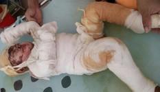 Bé gái 15 tháng tuổi bỏng nước sôi nguy kịch