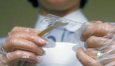 Xét nghiệm nước bọt có thể chẩn đoán ung thư trong vòng 10 phút