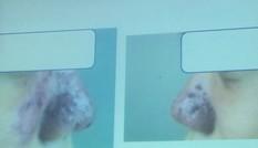 Phẫu thuật thẩm mỹ 'tại gia', cô gái trẻ suýt hoại tử mũi
