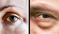 3 dấu hiệu dị ứng thường gặp và những lưu ý cần biết