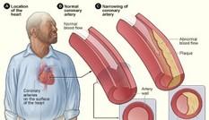 Canxi động mạch cao làm tăng nguy cơ đau tim