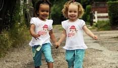 Kỳ lạ cặp sinh đôi một da đen, một da trắng cực hiếm gặp