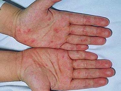 Đề phòng bệnh chân tay miệng biến chứng