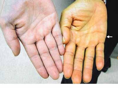 Thay đổi bất thường trên da, coi chừng bệnh nguy hiểm