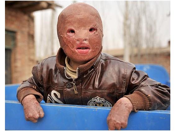 Cậu bé sống với khuôn mặt bị cháy