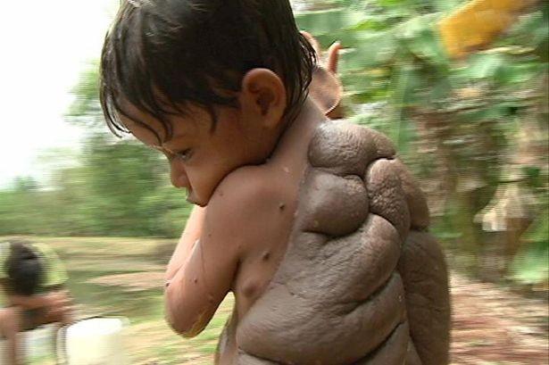 Chú bé có tấm lưng như rùa