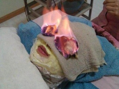'Sởn gai ốc' với phương pháp làm đẹp bằng…lửa