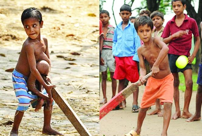Bé Deepak Paswaan trước và sau phẫu thuật
