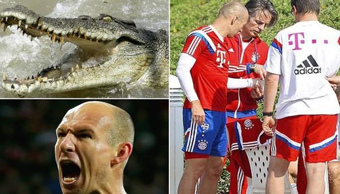 Robben suýt mất bàn tay vì bị cá sấu cắn
