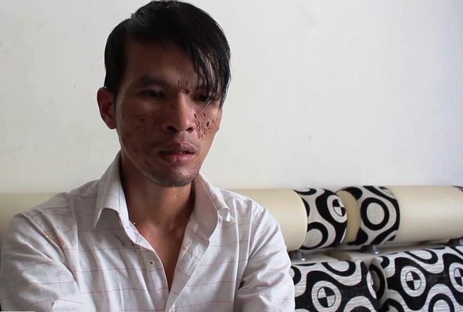 Nghi phạm Nguyễn Thành Dũng.