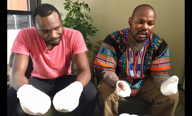 Hai người tị nạn Ghana bị bỏng lạnh, phải cắt bỏ ngón tay. Ảnh: CNN