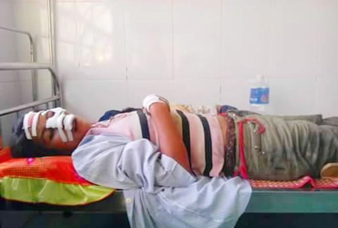 Nạn nhân tại Bệnh viện huyện Ia Pa.