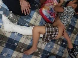 Cháu Trần Chí Kiên vẫn đang phải nghỉ học, nằm nhà do tai nạn gãy chân trong trường học.