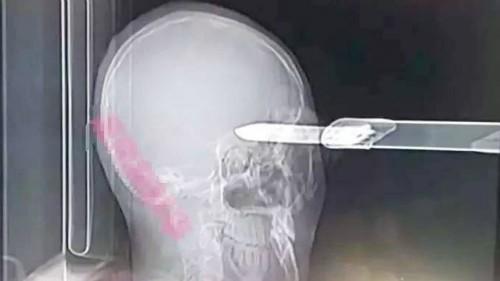 Con dao găm sâu vào bên trái đầu Guan. Ảnh: Asiawire.