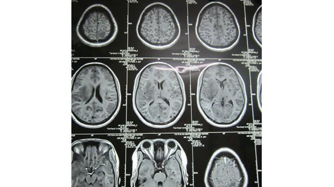 Hình ảnh chụp bệnh nhân bị sán làm tổ chi chít trong não (những chấm nhỏ màu đen là những tổ sán).