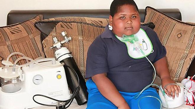 Caden Benjamin, 10 tuổi, mắc hội chứng rối loạn ăn uống hiếm gặp. Ảnh: CEN.
