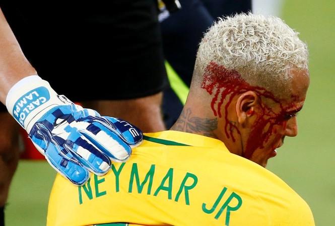 Neymar bị rách mí mắt ở trận đấu với Bolivia.