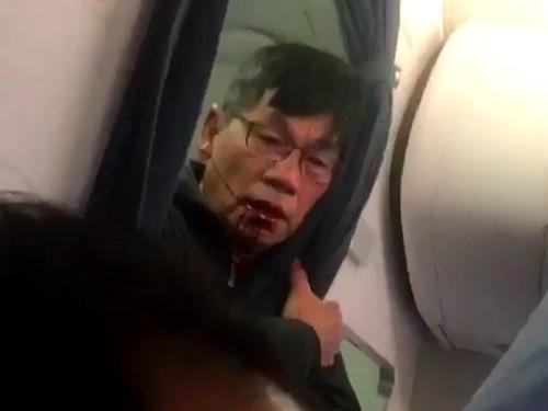 Bác sĩ David Dao bị thương sau khi bị lôi thô bạo khỏi máy bay của United Airlines hôm 9/4.