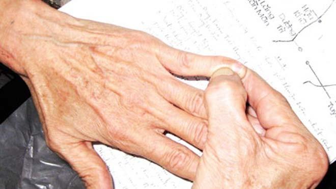 Viêm khớp dạng thấp thường gặp ở các khớp nhỏ (bàn, ngón tay…)