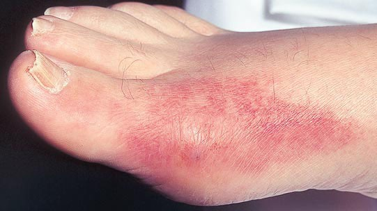 Cơn gút cấp thường khởi phát ở khớp ngón chân cái.