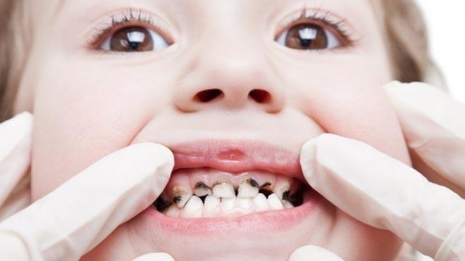 Sâu răng là một trong những nguyên nhân gây mất răng sớm