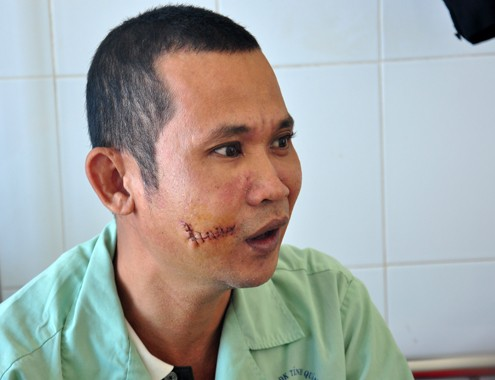 Anh Vương đang điều trị tại Bệnh viện đa khoa Quảng Ngãi. Ảnh: Trí Tín