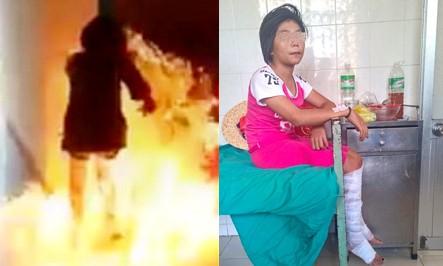 Ngọc Hân lúc phóng hỏa và được gia đình đưa tới bệnh viện ở thị xã Ninh Hòa để điều trị