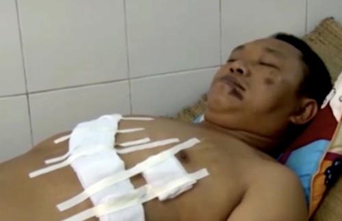 Sơn bị thương ở phần bụng và ngực đang được điều trị tại bệnh viện đa khoa thị xã Sơn Tây