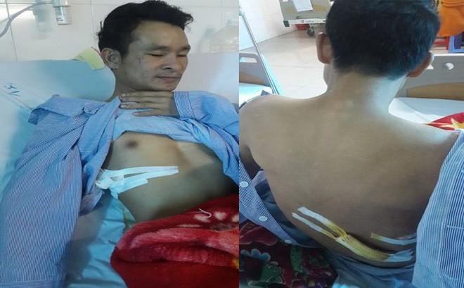 Anh Sơn đang được điều trị tại bệnh viện