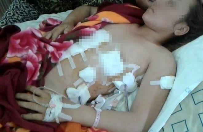 Chị Na được điều trị tại bệnh viện. Ảnh: Gia đình cung cấp