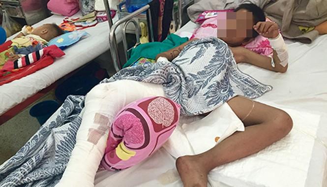 Đây là ca bị khỉ tấn công nghiêm trọng nhất mà bệnh viện Nhi Đồng 2 từng tiếp nhận. Ảnh: T.Chương.