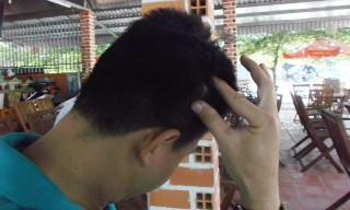 PV Thanh Lâm chỉ vào vùng đầu bị hành hung.