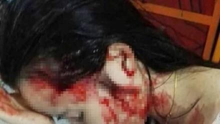Nạn nhân Phan Thị Hồng Ngọc bị cô giáo Phương và đồng bọn đánh chảy máu.