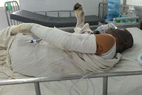 Anh T điều trị tại bệnh viện.