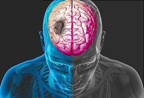 Cách phân biệt đau tim với đột quỵ - ảnh 5