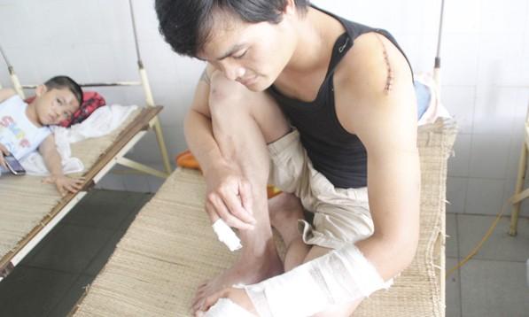 Anh Kiên bị côn đồ dùng mã tấu chém cánh tay trái, phải nhập viện cấp cứu - Ảnh: Lê Trung (Tuổi Trẻ)