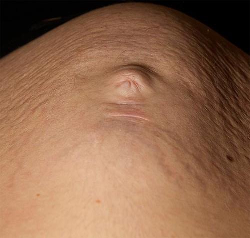 Nhìn từ dưới lên, lấy rốn của mẹ làm mũi thì gương mặt em bé hiện lên khá rõ ràng