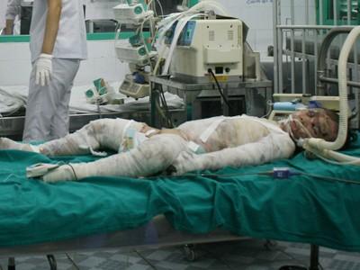 Bé Ngọc được cấp cứu tại BV và phải thở bằng ô-xy. Ảnh: Phạm Duẩn