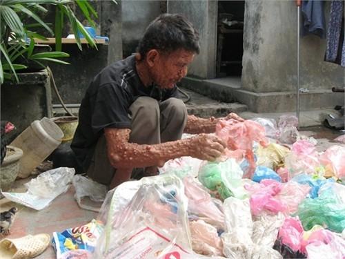 Không nghề nghiệp, ông sống bằng nghề nhặt rác nuôi con và người vợ bệnh tật.