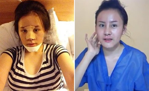 Và khuôn mặt nham nhở đáng sợ hiện tại trong quá trình phẫu thuật