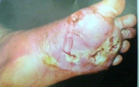 Bàn chân bị viêm loét của một bệnh nhân mắc bệnh tiểu đường. Căn bệnh này để lại hậu quả nặng nề cho người bệnh - Ảnh: VietNamNet