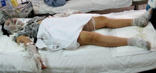 Chị Nguyễn Thị Luyến bị bỏng % cơ thể