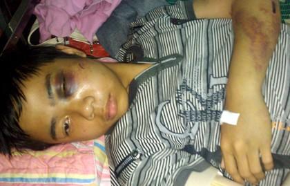 Học sinh Phan Lê Hiệp bị thương tích khắp người phải nhập viện để điều trị từ nhiều ngày qua. (Ảnh chụp ngày 17-4