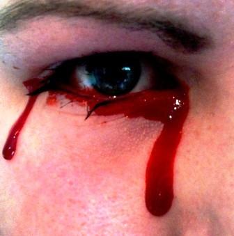 Chứng bệnh khóc ra máu có tên Haemolacria