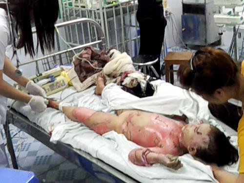 Bé Trần Thị Huyền đang được các bác sĩ cứu chữa